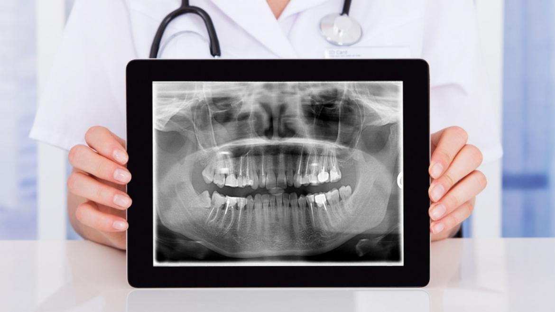 Ortopantomografía / RX Panorámica Dental