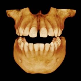 escaner 3d dental las palmas de gran canaria