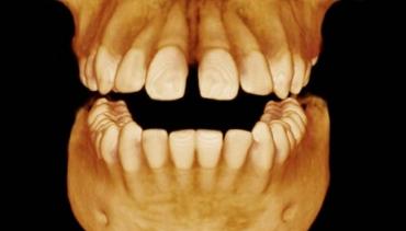 TAC Dental 3D (CBCT)