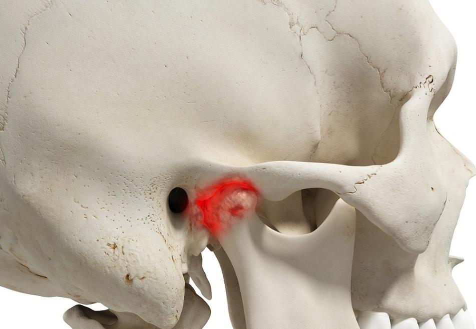 Tac de ATM, Articulación Temporomandibular (CBCT)